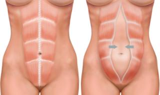 Укрепление мышц живота при грыже