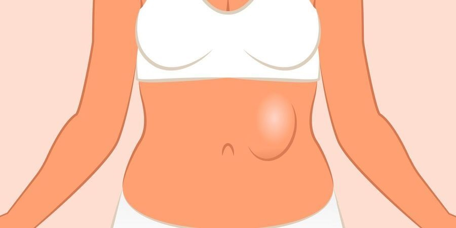 Эпигастральная грыжа у взрослых симптомы и лечение