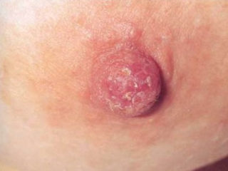 Признаки молочницы грудных желез фото симптомы
