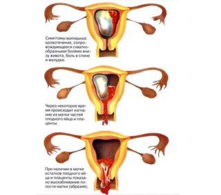 Колит внизу живота посередине у женщин