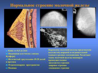 Молочная железа анэхогенное образование