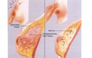 Колет в левой грудной железе