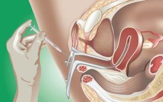 Анализ игх молочной железы расшифровка
