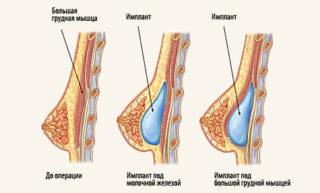 Что видно на маммографии