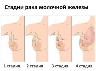 Подтипы люминального рака молочной железы и лечение. Люминальный рак молочной железы