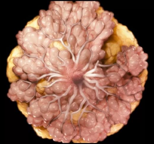 Первые признаки онкологии грудной железы