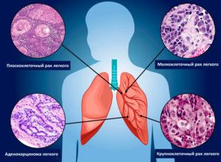 Первые признаки и симптомы рака молочной железы