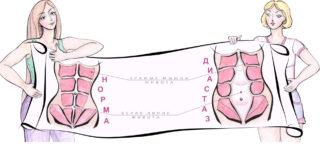 Упражнения при диастазе прямых мышц живота после родов для занятий в домашних условиях для лечения диастаза без операции