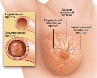 Уплотнение в молочной железе при грудном вскармливании с температурой и без: особенности лечения