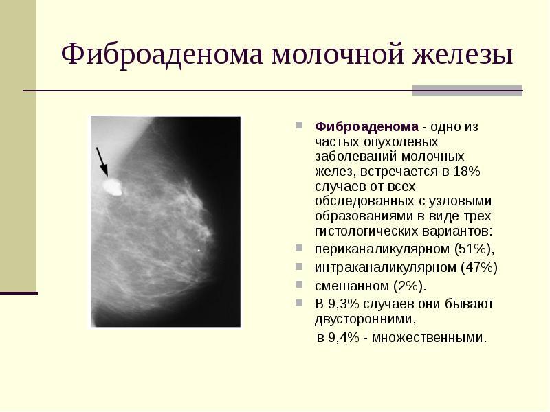 Как лечить фиброаденому молочной железы без операции народные средства и медикаментозное лечение