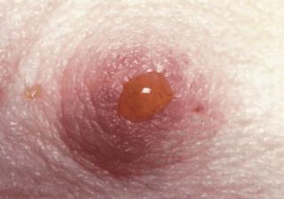 Черные выделения из груди 19