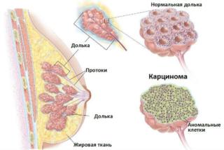 Жжение в груди у женщин - причины, почему печет и горит в левой или правой молочной железе