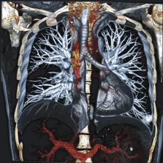 Что показывает кт грудной клетки с контрастом
