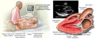 Боль в левой части грудной клетки