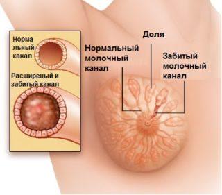 Опрелость под грудными железами с запахом