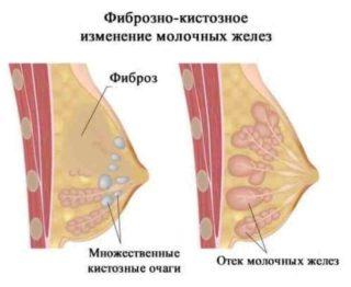 Может ли мастопатия перерасти в рак молочной железы: как отличить