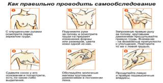 Маммография фиброзно кистозная мастопатия