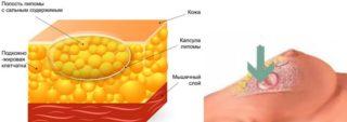 Узи признаки рака молочной железы