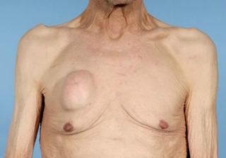 Температура при мастопатии 13