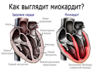 Покалывание в грудине у мужчин