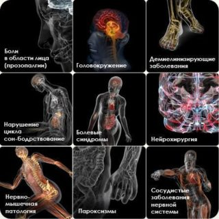 Постоянная боль в грудной клетке слева