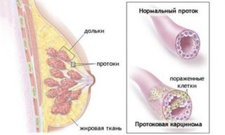 Протоковый рак молочной железы симптомы прогноз