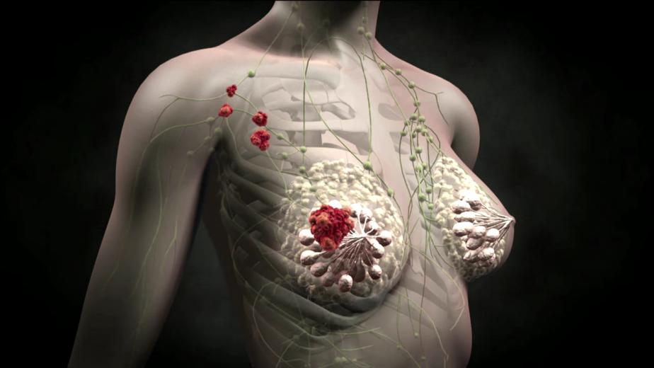 bolshie-grudi-v-onkologii