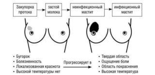 Как правильно перетянуть грудь для прекращения лактации