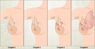Что такое susp bl, cr, ca, neo молочной железы
