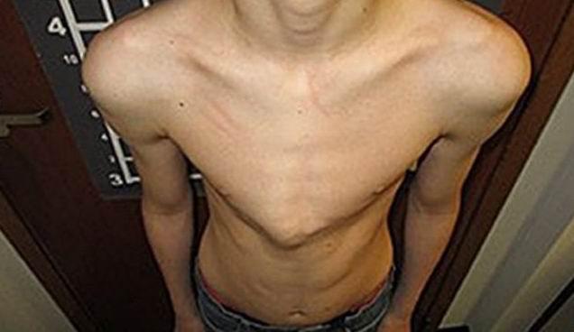 Чем опасна деформация грудной клетки?