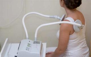 Повреждение грудино ключичного сочленения. Артроз грудино ключичного сочленения. Причины появления артроза