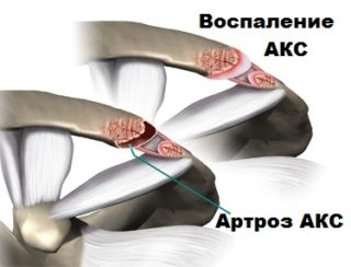 Акромиально ключичный артроз - Ортопед.info