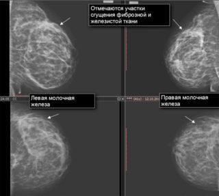 Крем от мастопатии для груди: Лекарь, мази и гели для женщин
