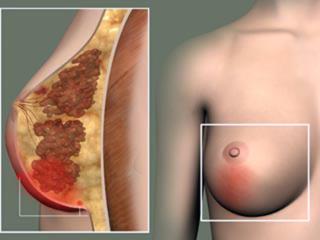 Симптомы и лечение кисты в молочной железе
