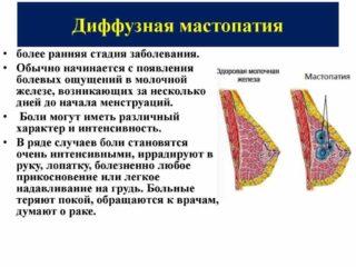 Жжение в грудной железе у женщин причины 28