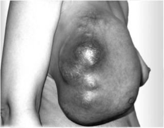 Мультифокальный рак молочной железы