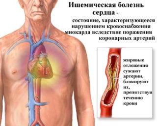 Жжение в груди слева. Боль и жжение в грудной клетке слева
