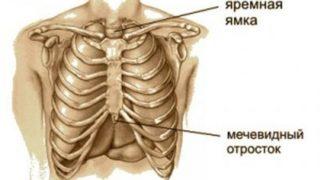 Мечевидный отросток грудины болит при надавливании