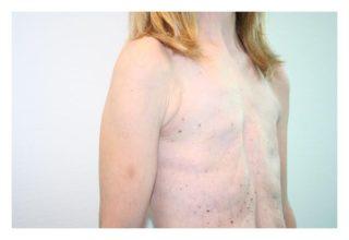 Анатомия молочной железы женщин
