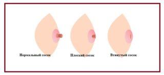 Трещины на сосках при грудном вскармливании: чем мазать и как кормить ребенка