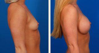 Какие импланты лучше ставить в молочные железы