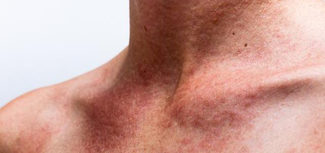 Маленькое красное пятно на груди