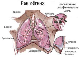 Почему больно дышать при вдохе в грудной клетке: причины, лечение.