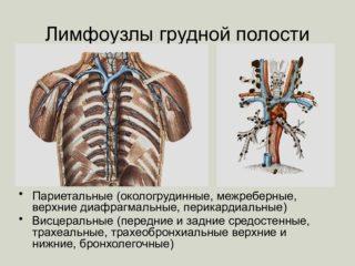 Воспаление грудных лимфоузлов у женщин