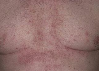 Белые точки на грудине у женщин