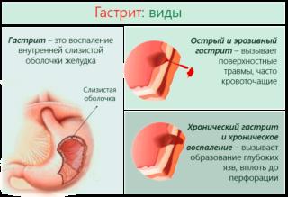 Боль в молочной железе слева у женщин при нажатии и без: ноющая и тянущая, острая и тупая, резкая и сильная, колющая