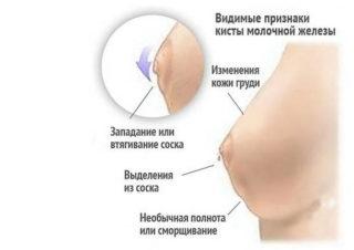 Что такое атипичная киста молочной железы