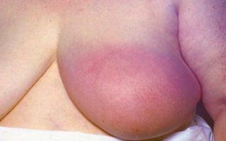 Инфильтративный рак молочной железы (неспецифического типа, протоковый, дольковый)
