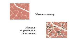 Почему горит грудная клетка изнутри причины жжения у женщин и мужчин