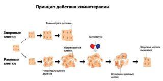 Химиотерапия до операции